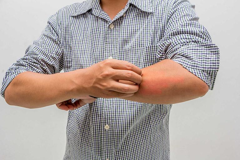 tác dụng của Calcipotriol
