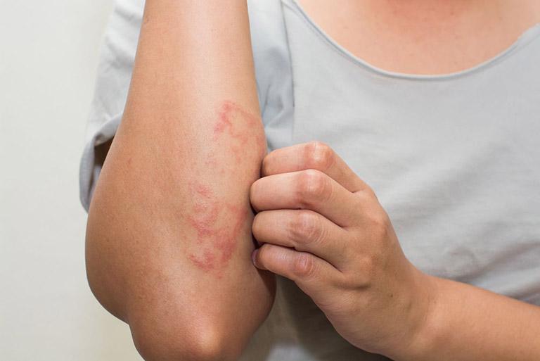 Gentridecme điều trị eczema