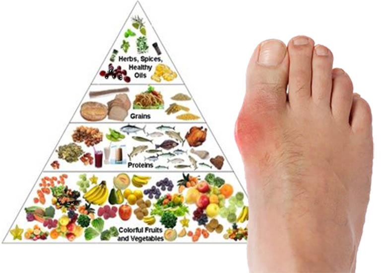 Ăn gì để phòng ngừa bệnh Gout