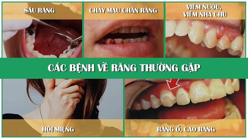 Các bệnh răng miệng thường gặp