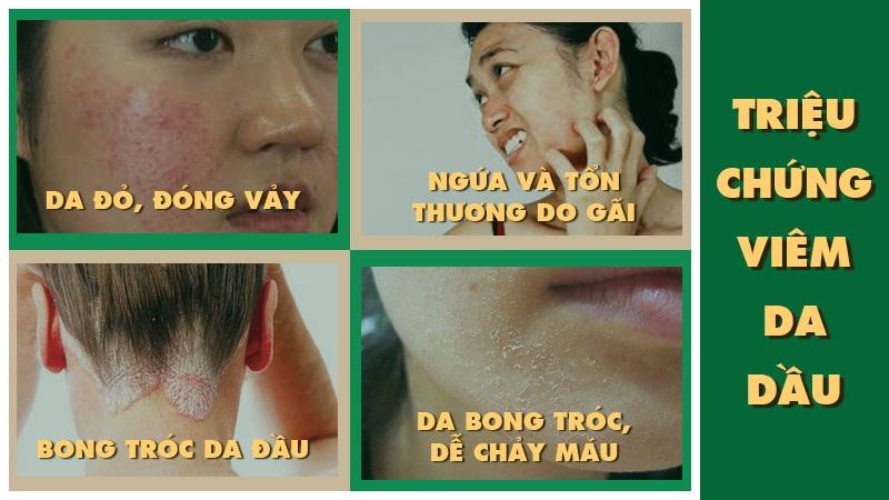 Các triệu chứng bệnh viêm da dầu