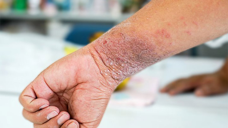 Bệnh chàm khô có lây nhiễm không?