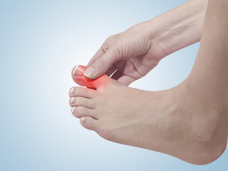bệnh gout tái phát