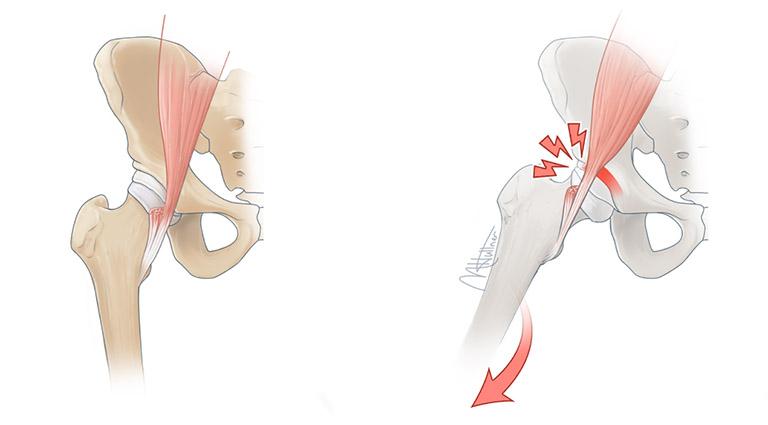 biến chứng sau khi thay khớp háng