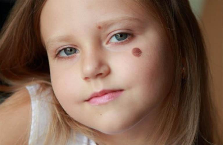 vết chàm bẩm sinh trên da