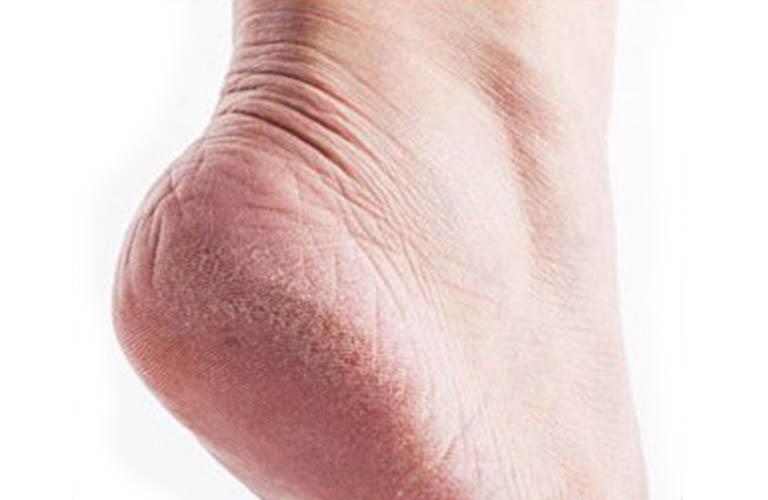 da chân tay bị nứt nẻ, rướm máu, khó chịu