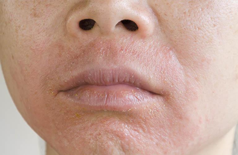 Da mặt ửng đỏ, ngứa rát và các biện pháp khắc phục