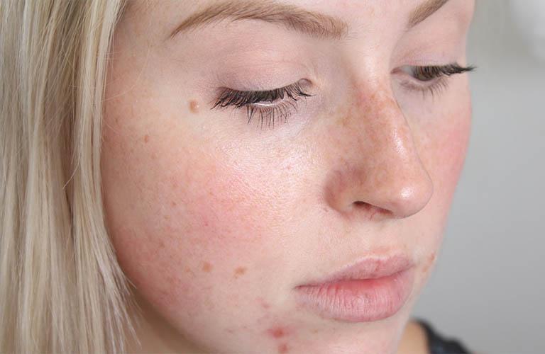 Da mặt ngứa và nổi mẩn đỏ do viêm da dị ứng