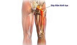 Tìm hiểu về cấu trúc và vị trí của dây thân kinh tọa