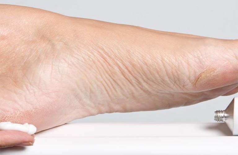 điều trị chân tay nứt nẻ
