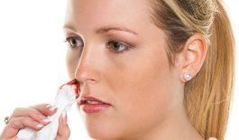 Các thông tin cần biết về bệnh chảy máu cam khi mang thai