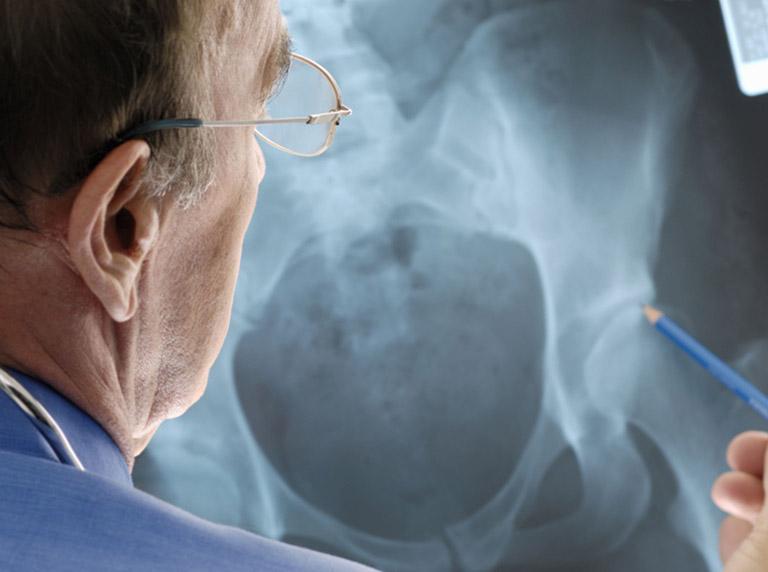 phẫu thuật thay khớp háng nhân tạo