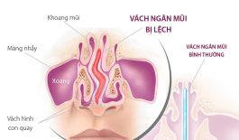 Tìm hiểu về chứng lệch vách ngăn mũi và cách điều trị