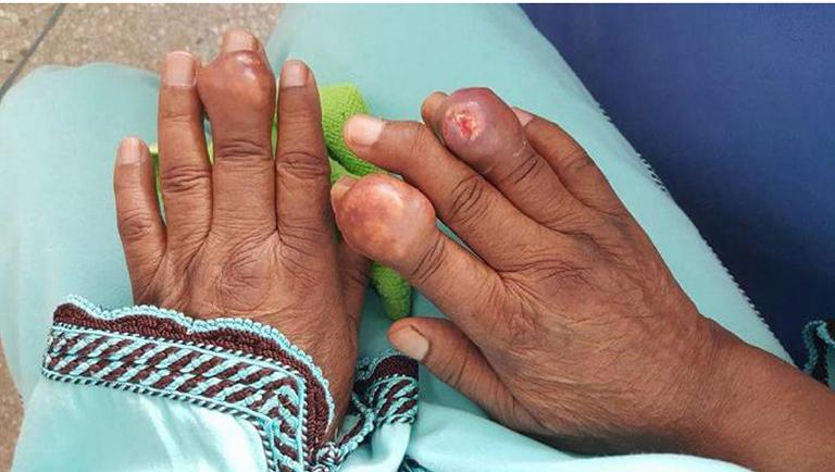 bệnh gout sống được bao lâu