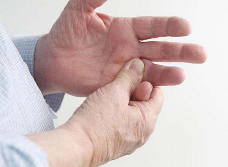 gout sống bao lâu