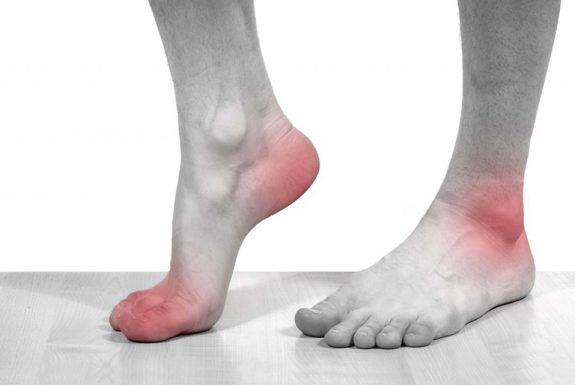 bệnh gout và cách phòng tránh