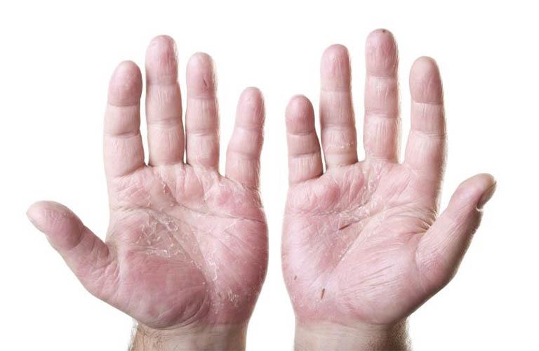 những nguyên nhân gây nứt nẻ chân tay