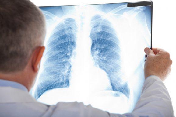 chẩn đoán thoát vị đĩa đệm lồng ngực