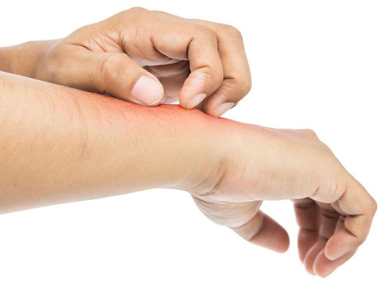 triệu chứng dị ứng đậu phộng