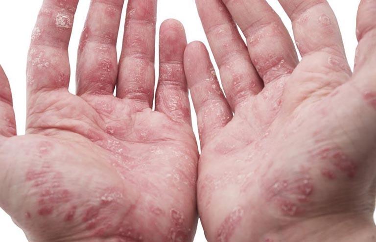 triệu chứng của viêm da cơ địa