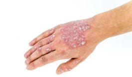 Bệnh vẩy nến có lây nhiễm không? Làm sao để phòng tránh