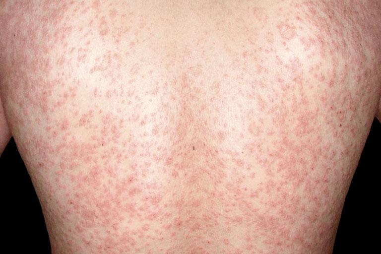 vẩy nến phấn hồng là bệnh gì