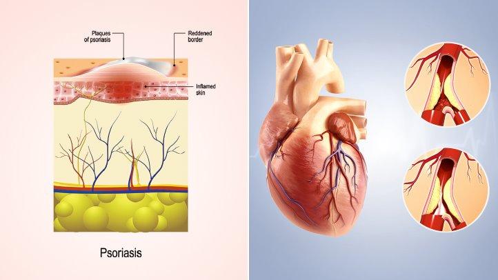 mối quan hệ giữa bệnh vẩy nến và bệnh tim