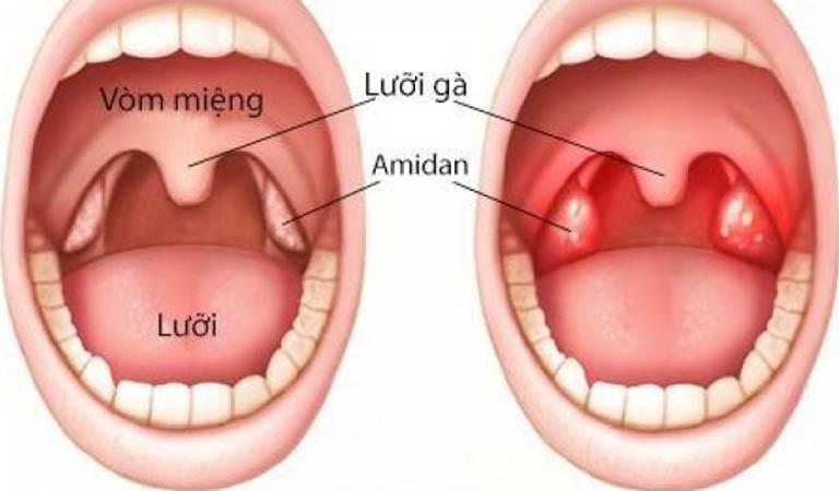 Viêm amidan: Nguyên nhân, triệu chứng và cách điều trị