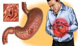 viêm dạ dày cấp bệnh học