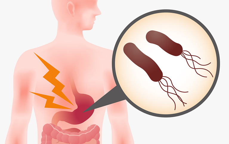 Tìm hiểu về bệnh viêm dạ dày Hp và cách điều trị