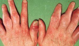 Tìm hiểu về bệnh viêm khớp vẩy nến và cách điều trị