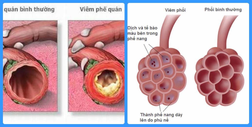 phân biệt viêm phế quản và viêm phổi