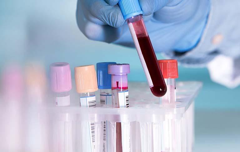 xet nghiem helicobacter pylori igg