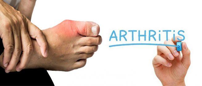 10 Lời khuyên hữu ích cho người bị viêm khớp sống khỏe mỗi ngày