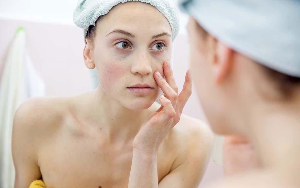nguyên nhân dị ứng da mặt