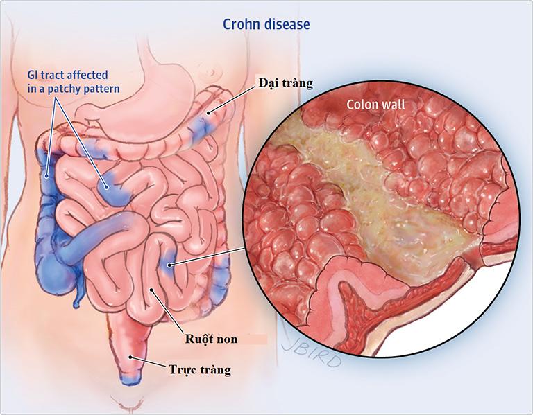 Bệnh Crohn có thể gây viêm đại tràng