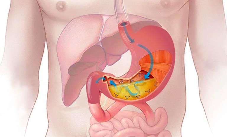 Bệnh dạ dày có lây qua đường ăn uống
