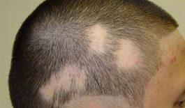 tìm hiểu chứng rụng tóc từng mảng