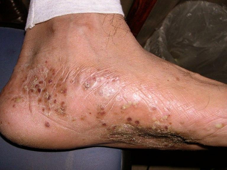 Triệu chứng bệnh tổ đỉa