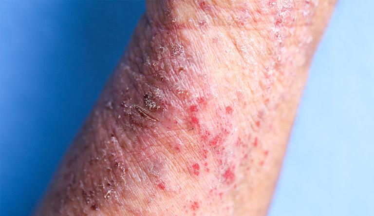 bệnh viêm da cơ địa dị ứng