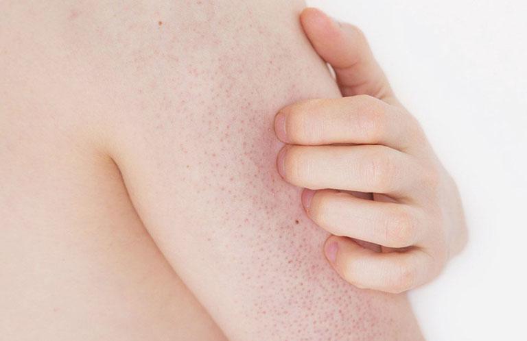 các loại nhiễm trùng da