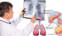 Các triệu chứng viêm phế quản kéo dài trong bao lâu?