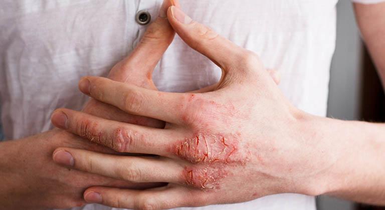 eczema bàn tay bàn chân