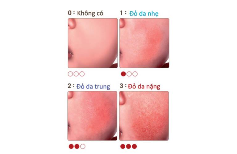 dấu hiệu đỏ da chàm thể tạng ở trẻ