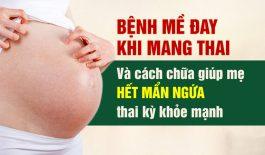 Chữa nổi mề đay khi mang thai an toàn