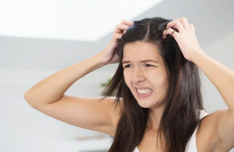 hạn chế gãi khi bị viêm da dầu ở đầu
