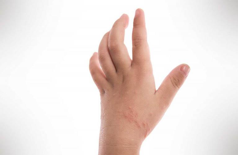 Sơ lược về bệnh Eczema ở trẻ em
