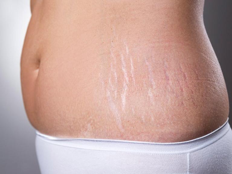 cách trị rạn da tại nhà