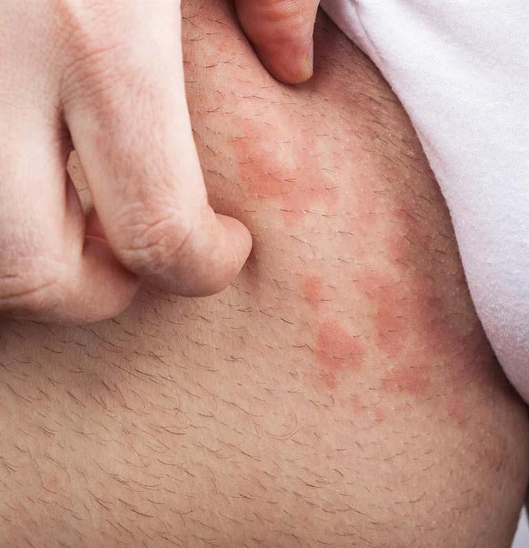 cách chữa chàm sinh dục nam