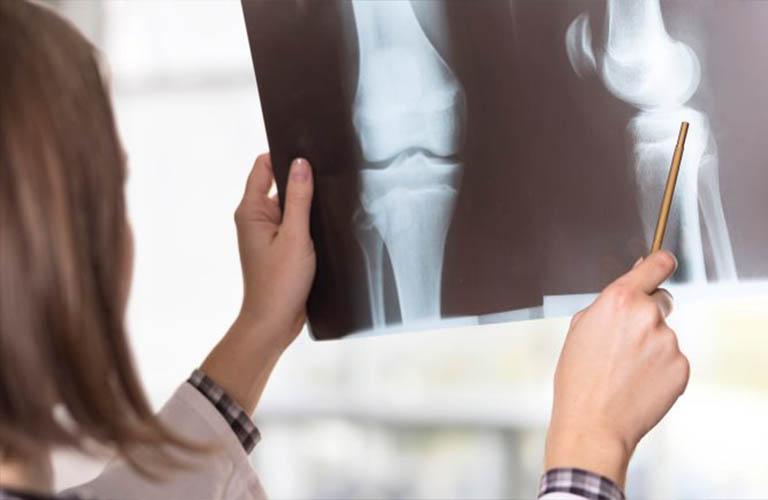 điều trị thoái hóa khớp gối dựa trên hình ảnh X quang